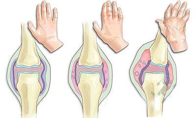 Ревматоидный артрит код по мкб 10: патогенез
