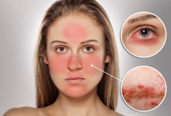 как лечить Демодекс на лице
