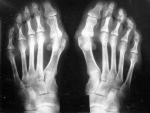 Посттравматический периартрит: диагностика