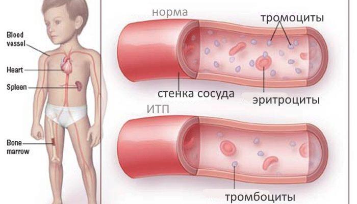 Как проявляется и лечится тромбоцитопеническая пурпура? Отвечаем на сложные вопросы