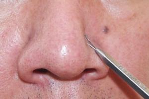 Секреты очищения кожи