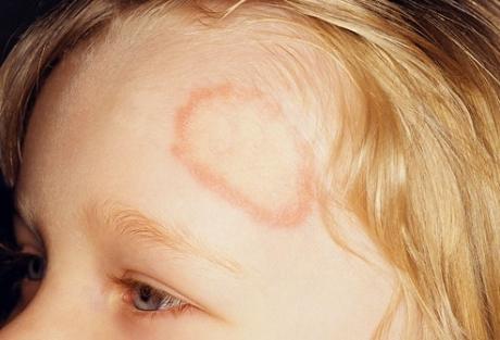 Почему микроспория чаще появляется у детей?