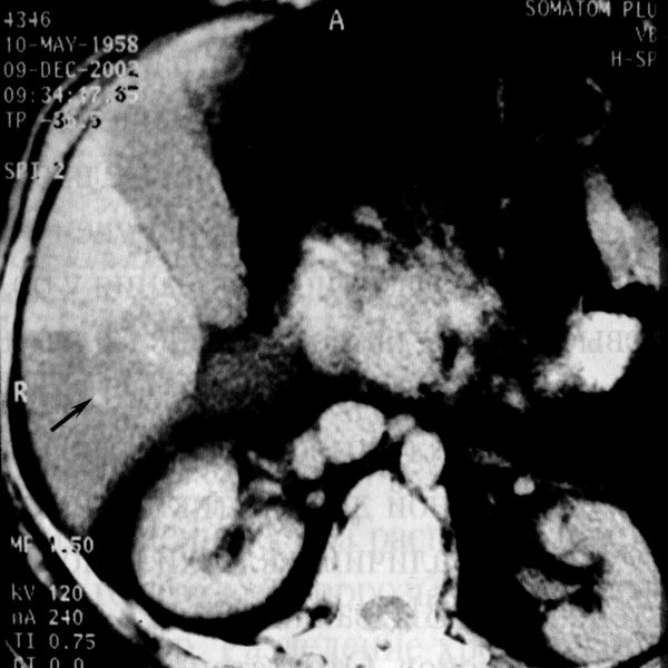 Очаговая форма жирового гепатоза (фото КТ)