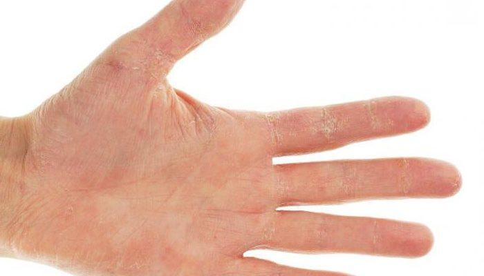 Почему чешутся руки? Причины зуда