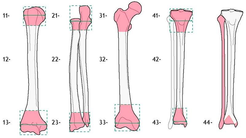 Обозначение анатомической локализации перелома по AO