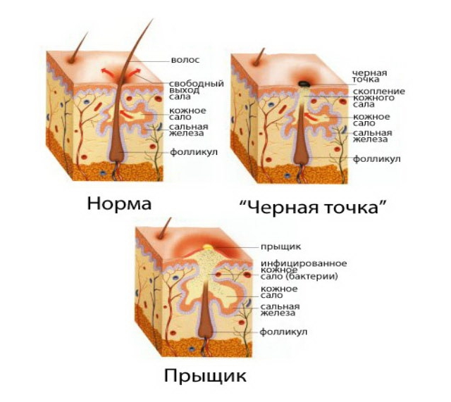 Как происходит образование кожных угрей