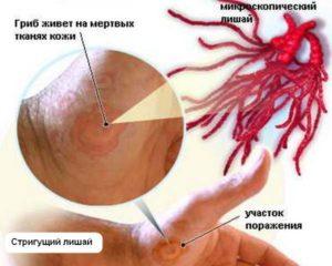 Показания к использованию крема и мази Травоген