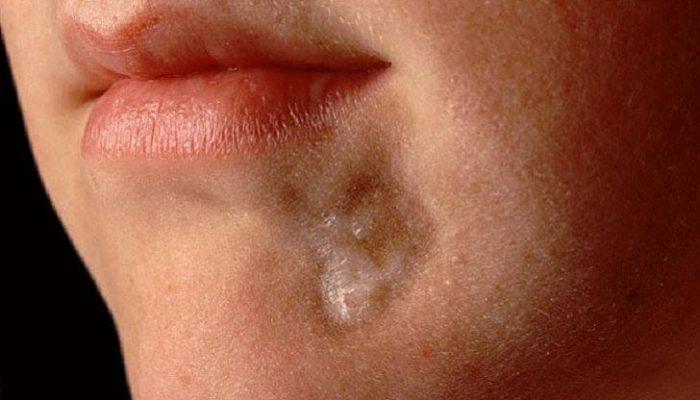 Опасна ли для жизни системная склеродермия? Формы, симптомы и лечение болезни