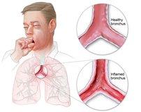 Грибок в легких и бронхах: симптомы и лечение