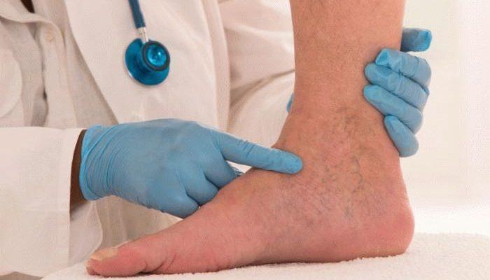 Посинела нога: причины и лечение