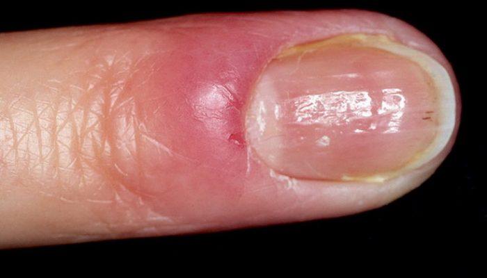 Нарыв на пальце возле ногтя: как лечить?
