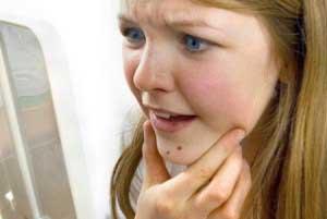 Как быстро удалить жировик с лица?
