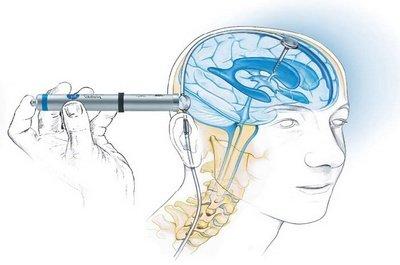 Способы лечения гидроцефалии (водянки головного мозга)