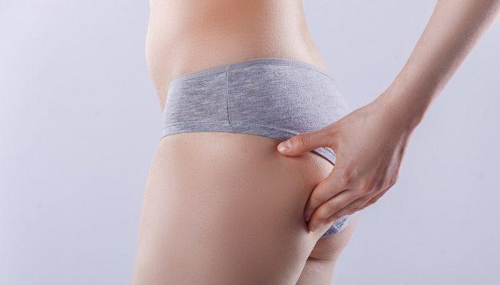 Как убрать растяжки после похудения?