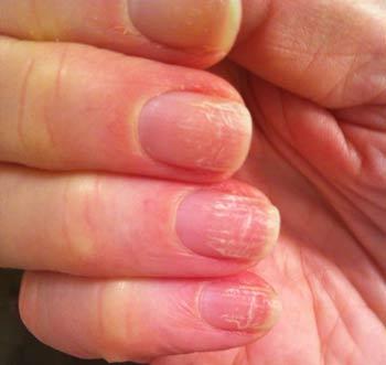 Симптомы начинающегося грибка ногтей на руках: фото