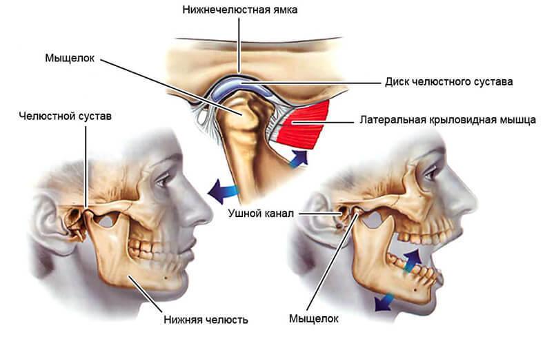 артрит внчс