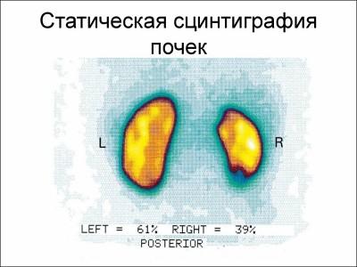 Типы почечного сканирования фото