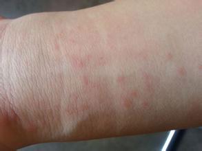 Высыпания на руках в виде красных точек