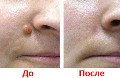 Как лечить фиброму на лице