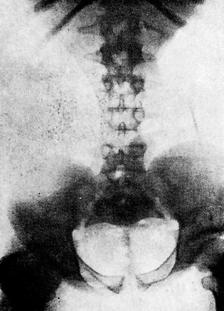 Ахондроплазия таза