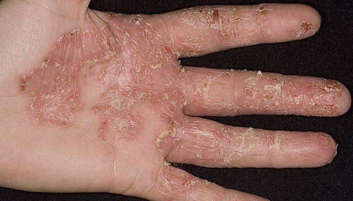 Как выглядят зудящие дерматозы? Отличия от дерматита и методы лечения