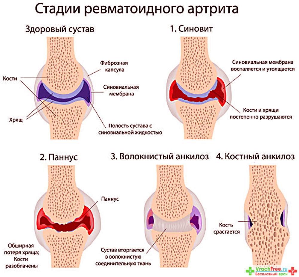 болезнь ревматоидный артрит