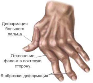 Серопозитивный ревматоидный артрит: симптомы