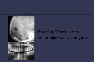 Болезнь Таратынова эозинофильная гранулема
