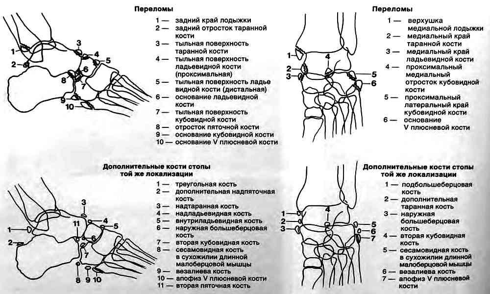 Дифференциальная диагностика между обычными отрывными переломами с добавочными косточками