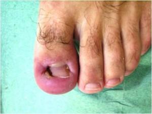 Грибок ногтя на большом пальце ноги: фото