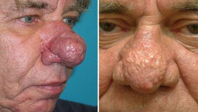 Изменение формы и покраснение носа при ринофиме