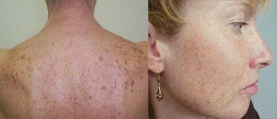 Лентиго – доброкачественные высыпания на коже в виде небольших пятен тёмно-коричневого цвета