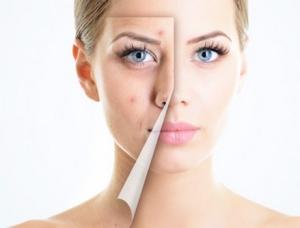 Скинорен в виде крема быстро нормализует общее состояние кожи