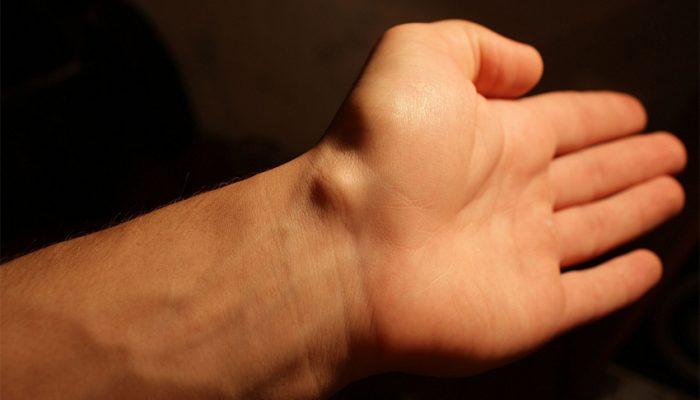 Почему образовалась шишка на запястье, руке, ноге, голове? Лечение в зависимости от причины