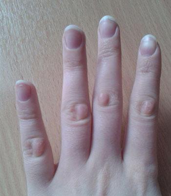 Наросты кожи на пальцах