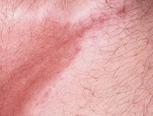 как лечится поверхностная форма псевдомикоза кожи - эритразма: симптомы, разновидности, лечение