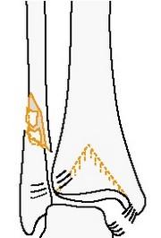 Надсиндесмозный диафизарный многооскольчатый перелом малоберцовой кости