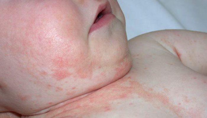 Контактный дерматит: симптомы и лечение у детей