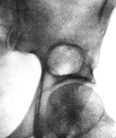 Ксантоматоз. Очаг деструкции в теле подвздошной кости.