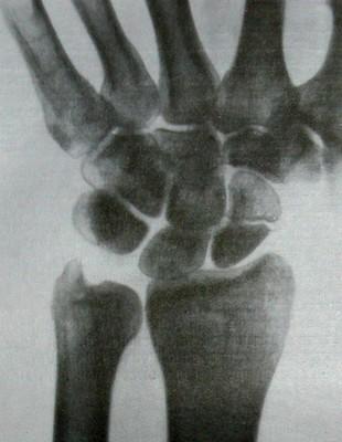 Снимок перелома ладьевидной кости после 6-недельной иммобилизации