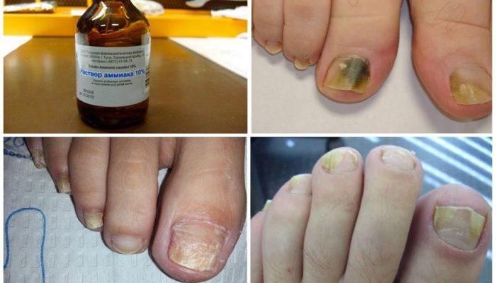 Можно ли использовать нашатырный спирт от грибка ногтей? Рецепты