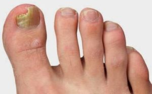 Разновидности грибка ногтей