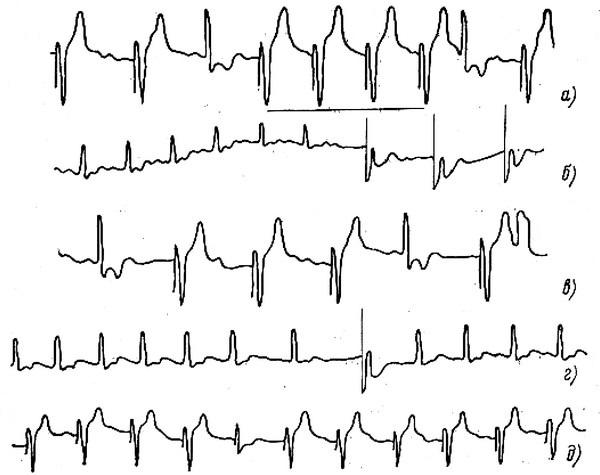 Записи электрокардиограммы при использовании R-запрещающего ЭКС (кардиостимулятора типа «Тесла» LSK 200)