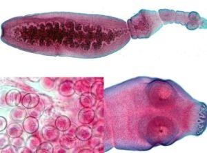 Симптомы и признаки эхинококкоза у человека