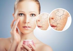 Когда потребуется лечебная косметика для проблемной кожи