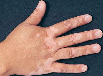 Что вызывает белые сухие пятна на коже?