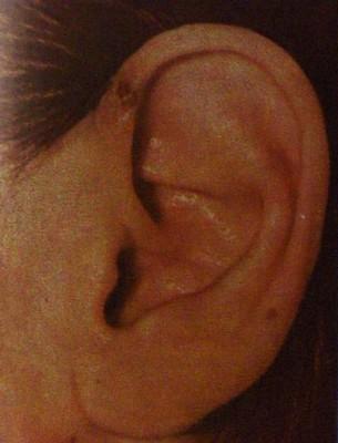 Системная красная волчанка хронического течения. Некроз ушной раковины.