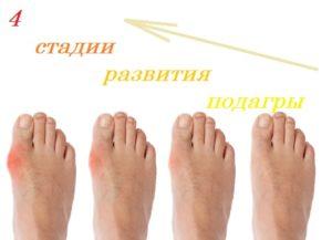 Лечение подагрического артрита пищевой содой: стадии подагрического артрита