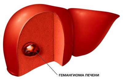 Опухоль печени гемангиома (код по МКБ 10, УЗИ, КТ, МРТ)