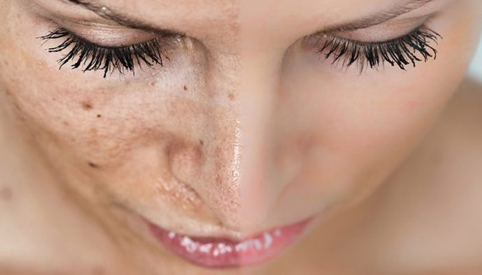 Хлоазма и мелазма на лице: лечение